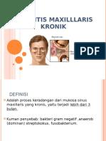 8. Sinusitis Maxilllaris Kronik.ppt