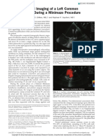 08. Transesophageal Imaging of a Left Common Pulmonary.8