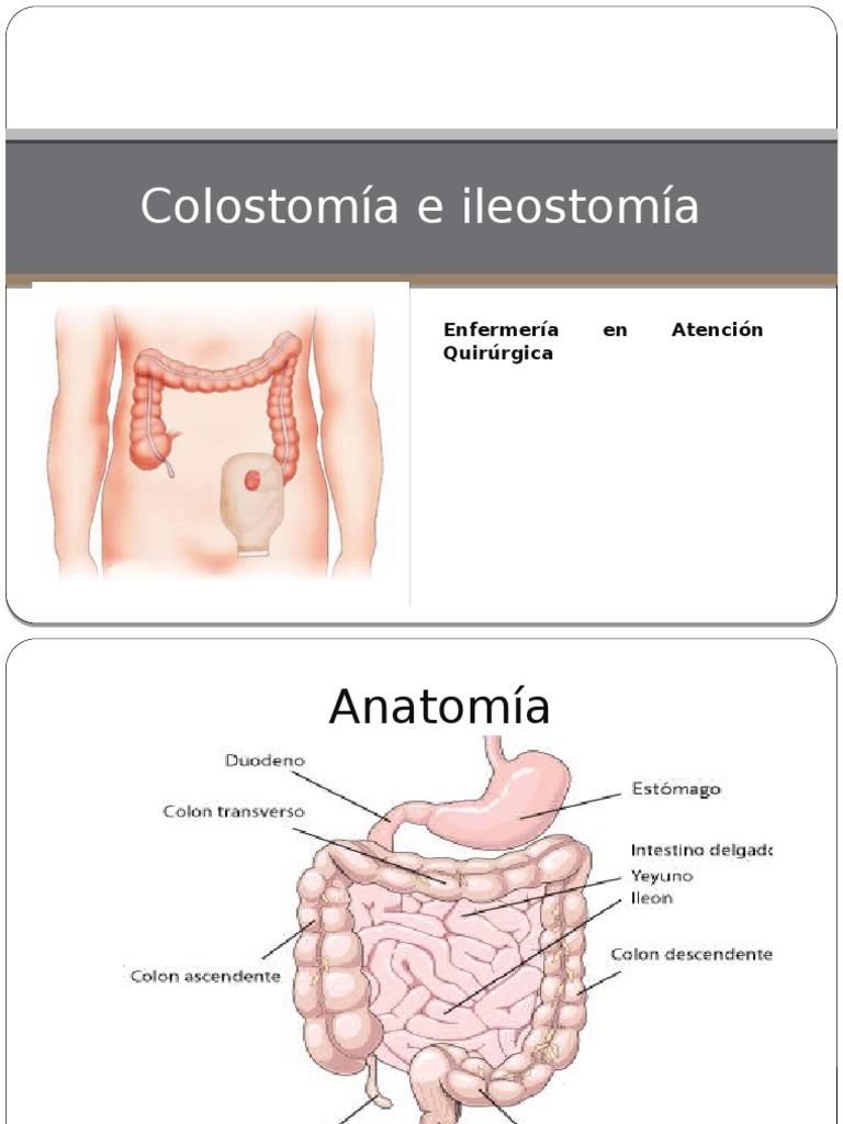 Colostomía e Ileostomía