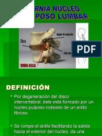 HNP Lumbar