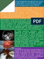 Etiología Inusual de Ileo en Enfermedad Inflamatoria Del Colon