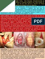 Duodenopancreatectomía Total Por Trauma. Presentación de Un Caso