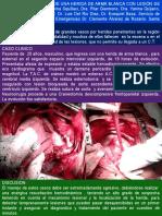 Presentación Atípica de Una Herida de Arma Blanca Con Lesión de Arteria Aorta