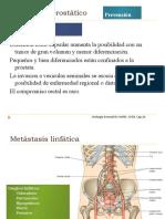 Carcinoma prostático