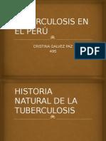 Tuberculosis en El Perú
