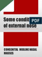 External Nose.pptx