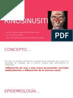 Rino Sinusitis