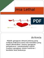 Aritmia Lethal