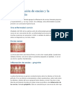 Inflamacion en Las Encías y Periodontistis