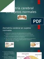 Asimetría Cerebral en Sujetos Normales