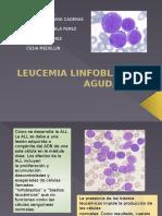 Leucemia LinfoBLASTICA Aguda (LLA)