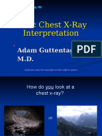 Basis Chest X-ray