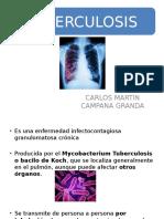 Tuberculosis Imagenes