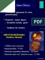 Aula Fígado 2