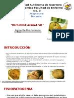 Ictericia Neonatal Cuidados de Enfermeria. Ma. Elida Hernández Ríos