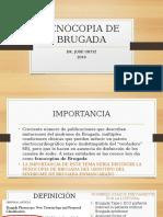 Fenocopia de Brugada