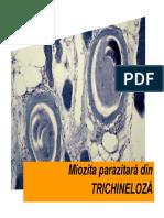 Miozita Din Trichineloza
