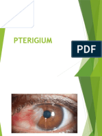 Penyuluhan Pterigium