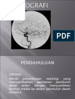 Arteriografi