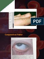 Anemia in Pregnancy