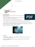 Técnica de Infiltraciones en El Pie 2011