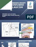 Glaucoma Divi