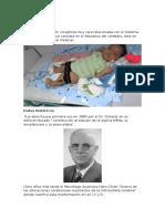 Arnold Chiari Para Diapositivas