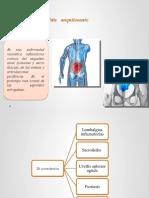 Espondilo artritis