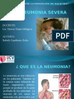 Neumonia Severa
