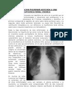 Calcificacion Pulmonar Asociada a Una Insuficencia Renal Cronica