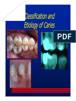 Classification and Etiology of Caries Review