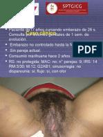Caso Clinico sifilis