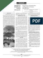 Importância Das Radiografias de Seio Frontal Para a Identificação Humana