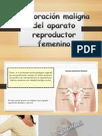 Exposición Grupal-tumor Femenino