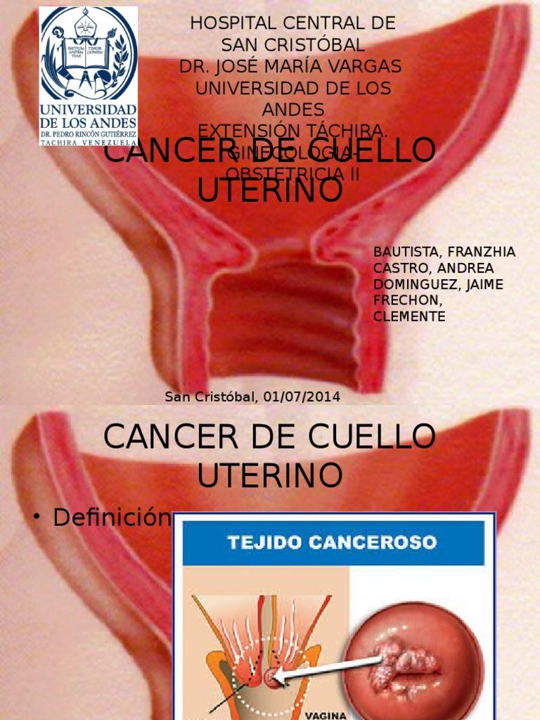 Cancer de Cuello Uterino (2)