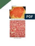Kelenjar Tiroid&Paratiroid.docx
