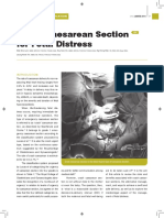 CMEarticleJPOG JanFeb2015_ Crash Caesarean Section for Fetal Distress