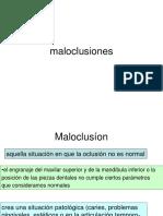 oclusion clasificacion de angle (1).pdf