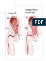 retncion urinaria