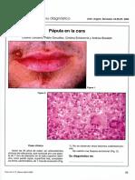 Arch. Argent. Dermatol. 54 85-87 2004