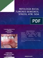 Patología Bucal, Tumores Benignos
