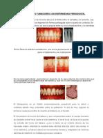 Pacientes Fumadores Con Enfermedad Periodontal (1)