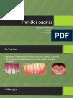 Frenillos linguales.pptx