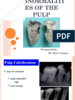 Abnormalities of the Pulp