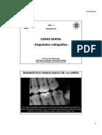 Seminario 3 - Diagnostico Radiologico de La Caries