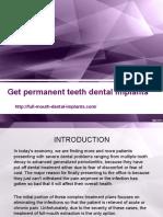 Get Permanent Teeth Dental Implants