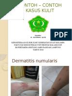 Contoh – contoh kasus kulit (2).pptx