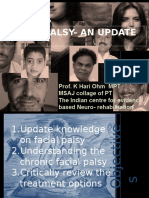 fascial palsy