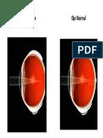 Ojo Normal y Ojo Con Miopia