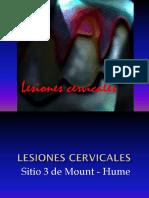 Lesiones Del Tercio Cervical